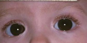 先天性青光眼易致盲 症状识别很重要