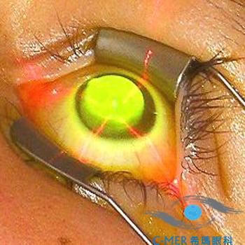 胶原交联术——锥形角膜治疗新研究