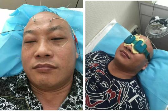 中医针灸治疗电脑干眼症