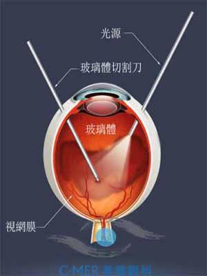 玻璃体切除术:适用视网膜大量裂孔