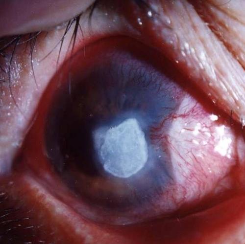 角膜溃疡疾病的治疗