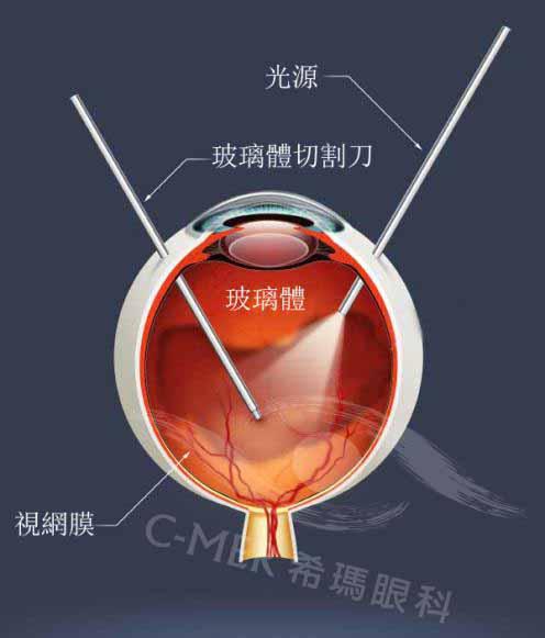 玻璃体严重混浊,可选择玻切手术治疗