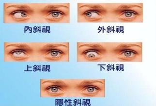 斜视并非难以发现 细数斜视的症状