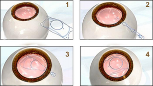 高度近视患者的福音--ICL手术