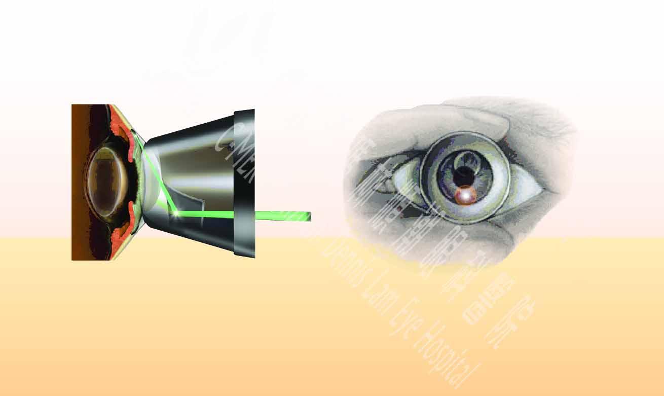 急性青光眼新方法——激光虹膜边缘成形手术