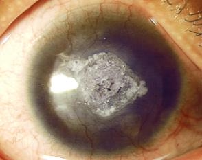 角膜白斑是怎么回事?