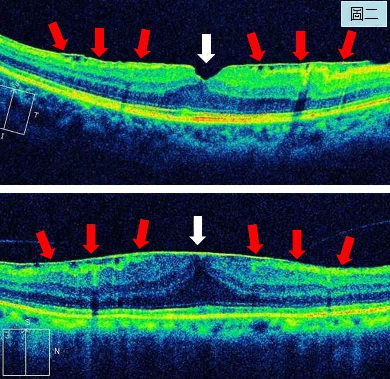 如何锁定黄斑前膜手术的黄金时间