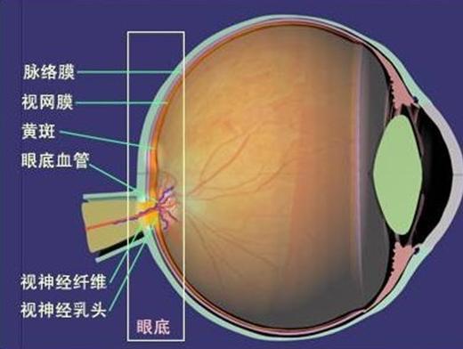 视网膜脱落的主要症状