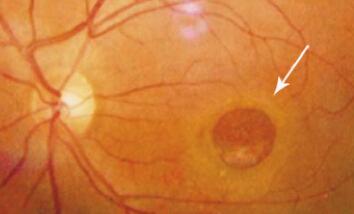 黄斑裂孔怎么治疗不复发