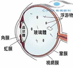 """眼睛""""飞蚊""""不简单,它潜伏哪些眼疾病"""