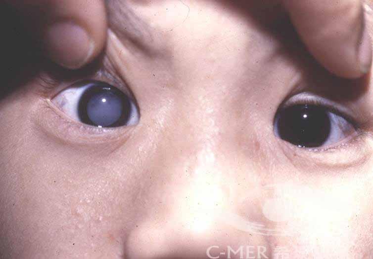 家长注意:宝宝也会患上白内障