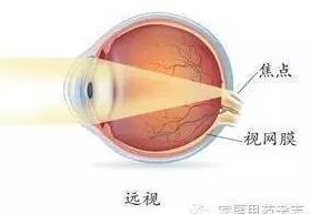 眼轴长度与年龄对应表