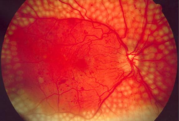 糖尿病性视网膜病变的5个防治方法