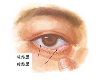 角膜与结膜的位置