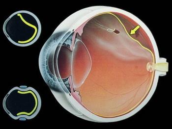"""对着""""屏幕""""久了会导致视网膜脱落?"""