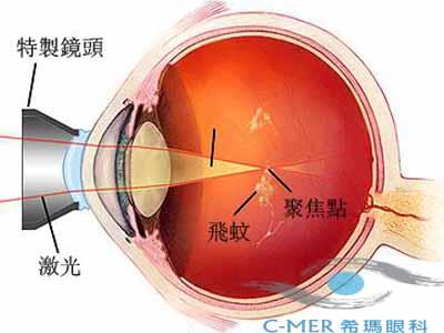 激光可以应用到哪些眼底病?
