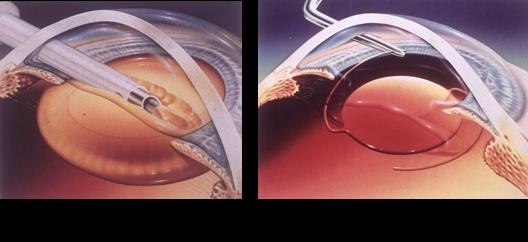 白内障与晶状体的关系