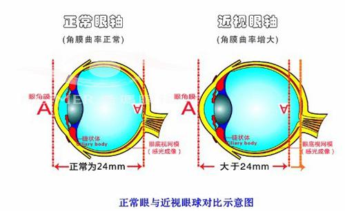 视轴与高度近视的关系