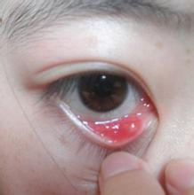 麦粒肿--小朋友的常见眼病