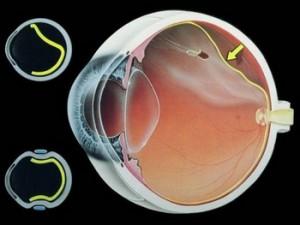 久对屏幕会使视网膜脱落说法正确吗?