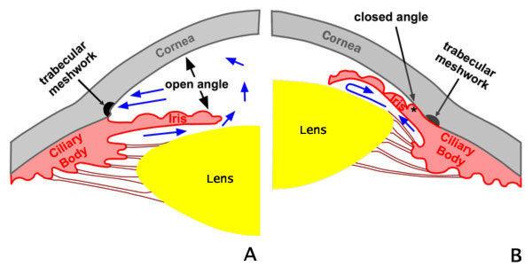 正常眼压 也可能发生青光眼