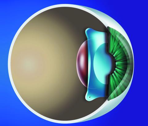 做ICL治疗高度近视,你通关了吗?