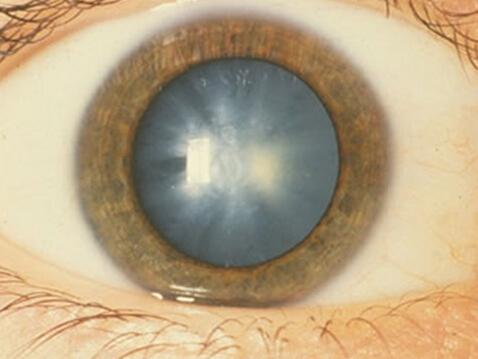 瞳孔颜色改变是什么病?发白或是白内障