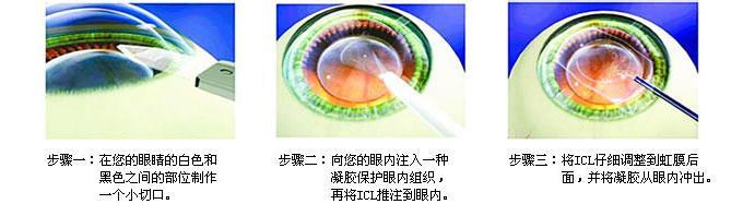 高度近视者的救星——ICL晶体植入术