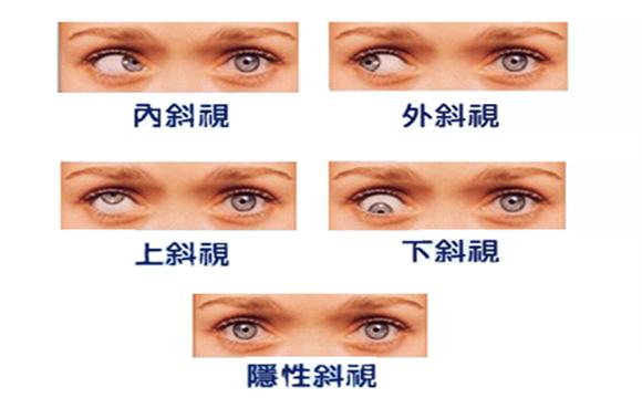 深圳希玛林顺潮眼科医院:斜视如果不治疗会怎样