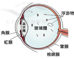 成年人治疗近视,角膜较薄怎么办?