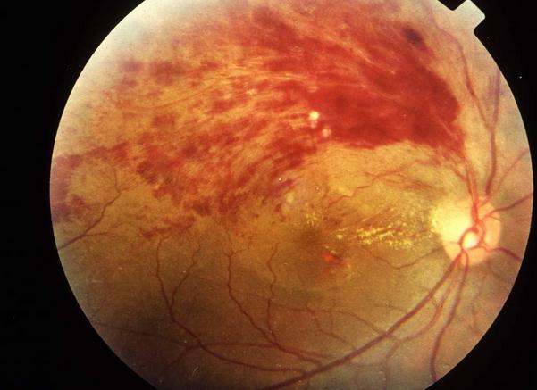 深圳希玛林顺潮眼科医院:视网膜脱落为什么应及早治疗