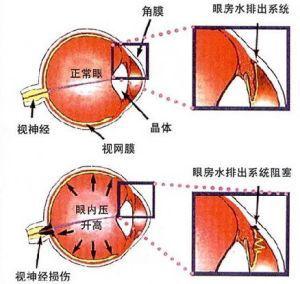 青光眼症状